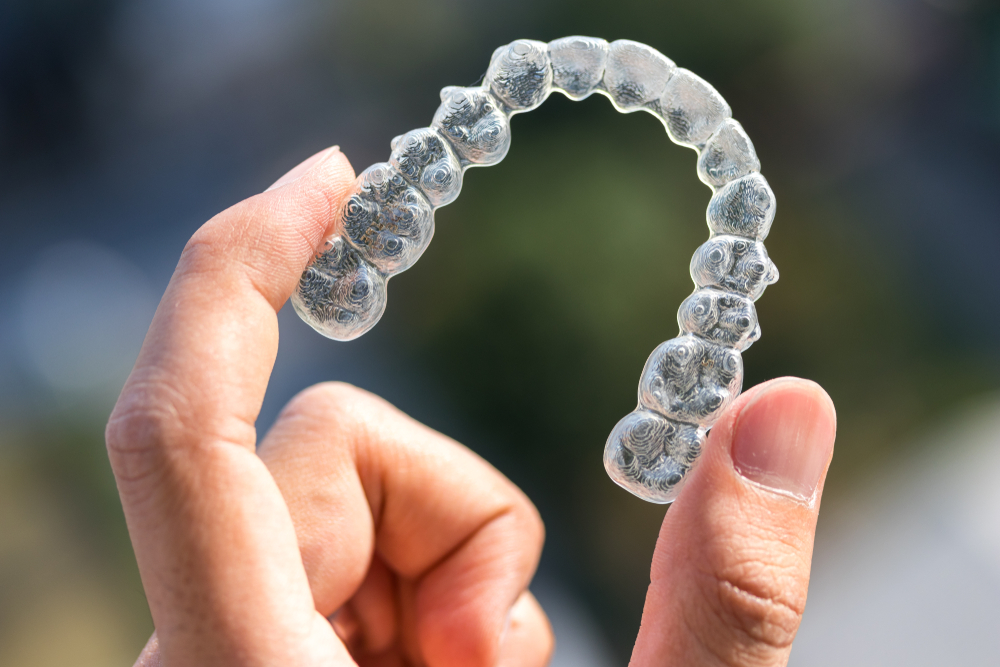 Invisalign and how long you have to wear them