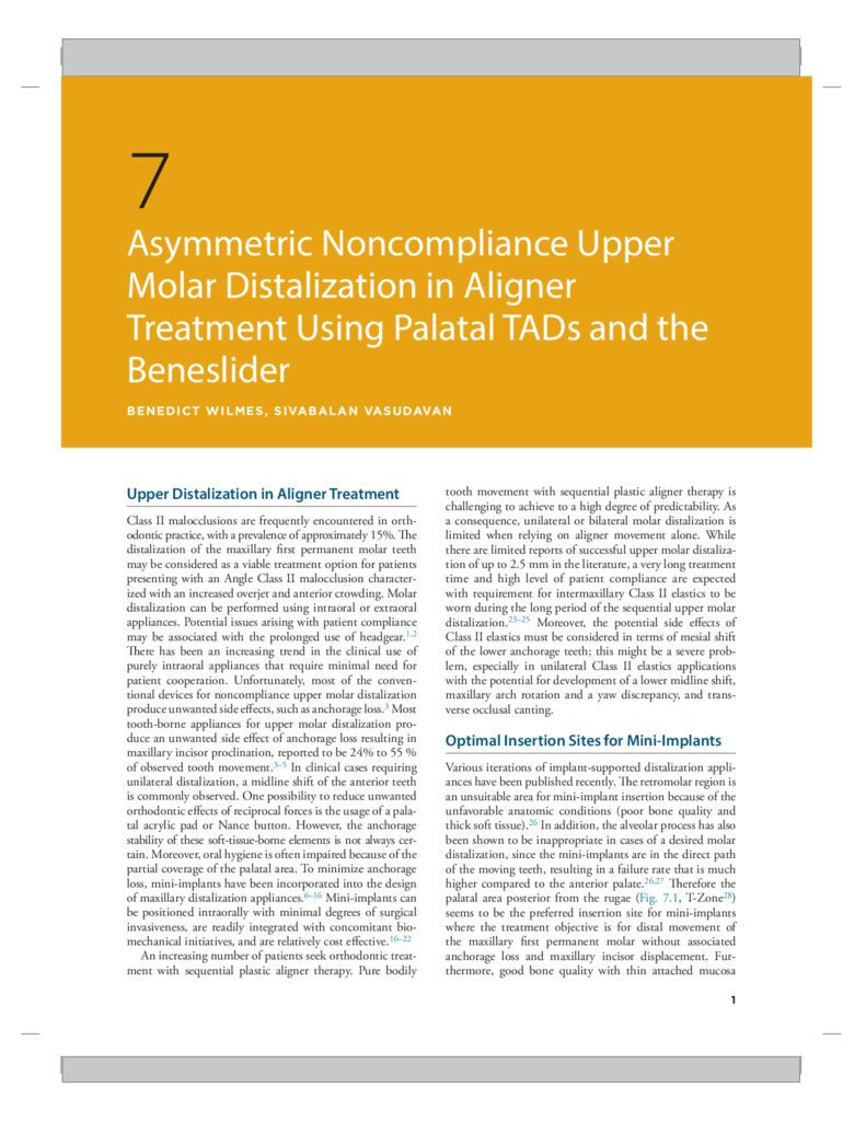 thumbnail of Asymmetric Noncompliance Upper Molar Distalization in Aligner Treatment Using Palatal TADS and the Beneslider